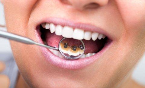 Как улучшить состояние своих зубов?